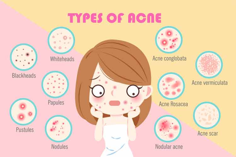 How can I Prevent Acne Scars Naturally