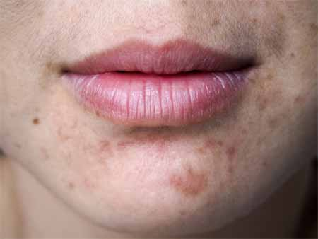 What are some natural measures to prevent acne scars